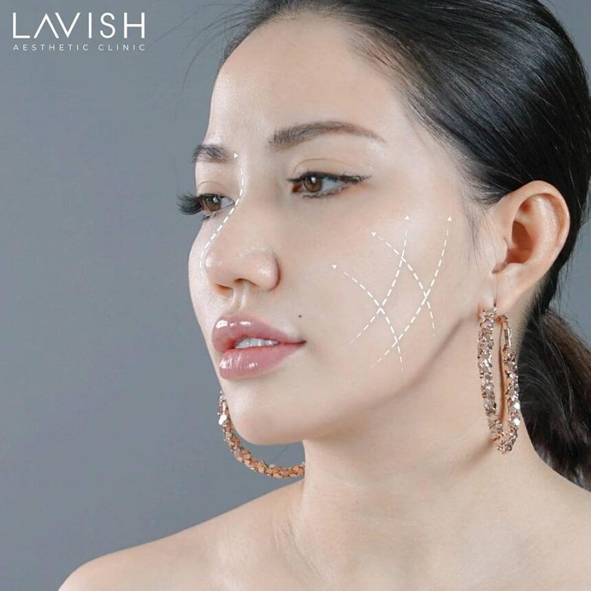 căng da mặt bằng chỉ collagen