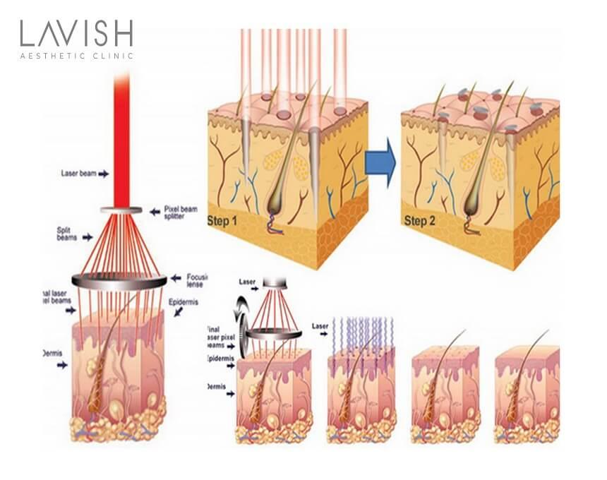 cơ chế điều trị mụn bằng picosure