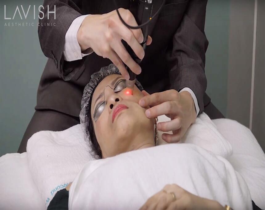 điều trị sẹo bằng laser