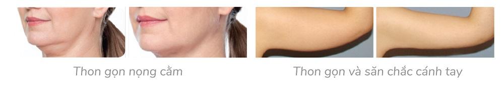 trước và sau điều trị mesolipodic